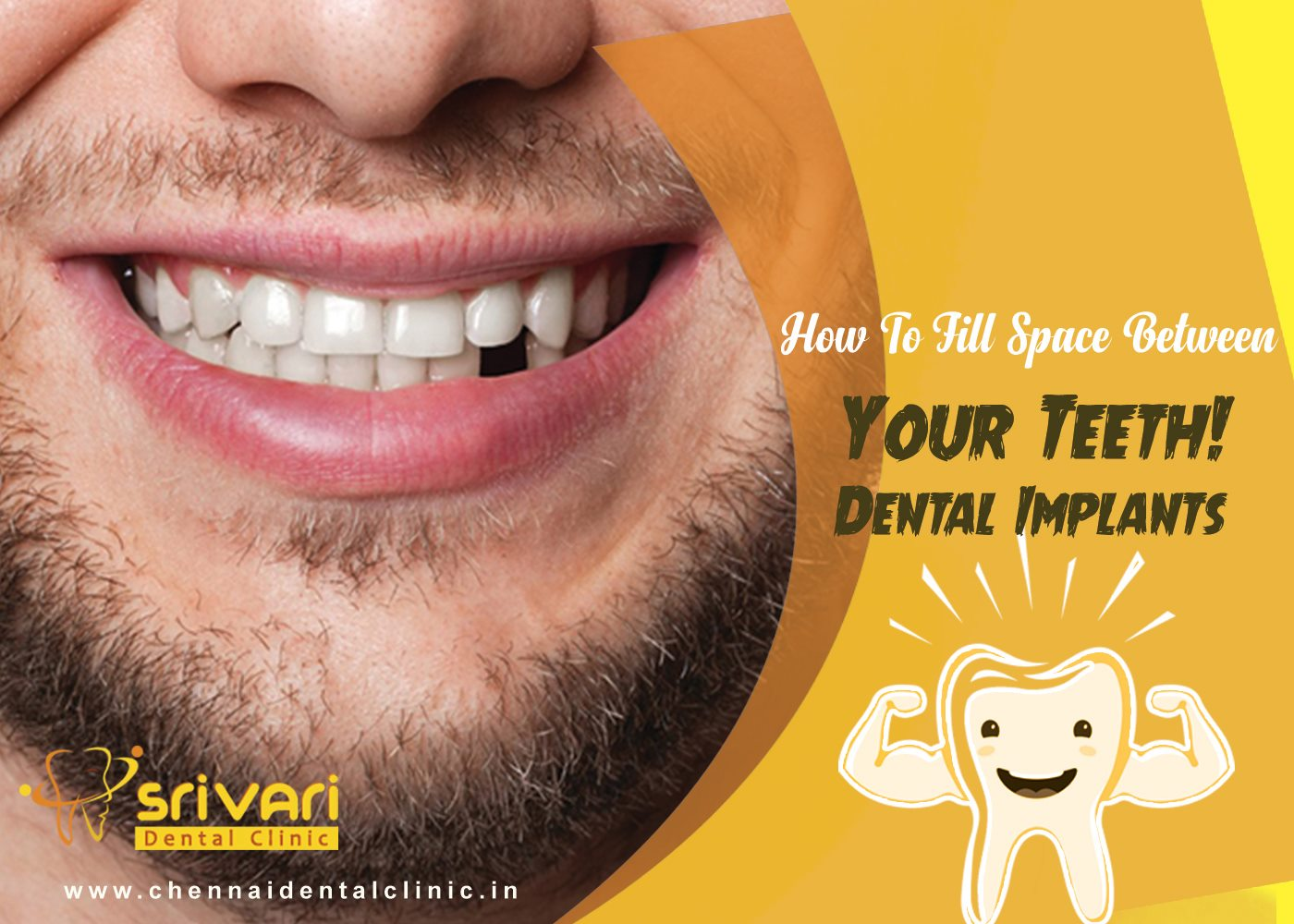 best tooth implant in india