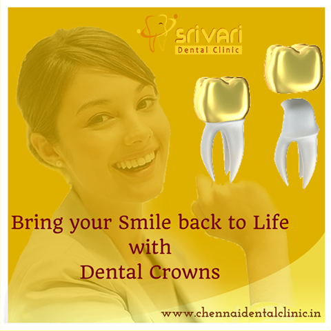 Enhance Your Teeth Appearance Using Golden Crown