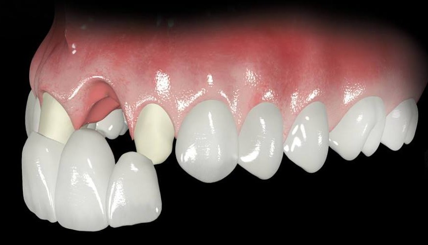 Fixed partial denture(FPD)