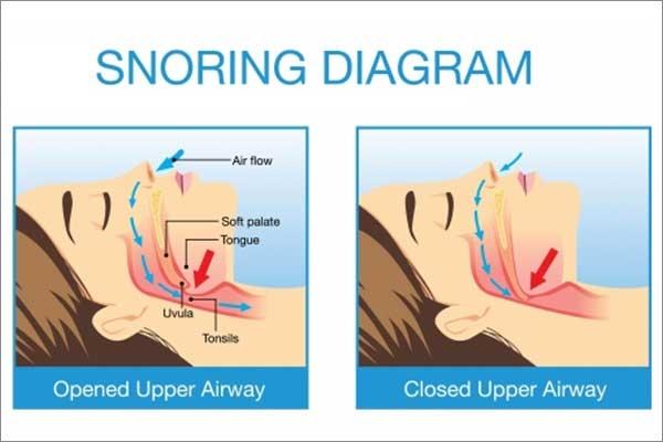 mandibular appliances for snoring