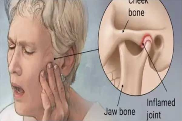 temporomandibular disorder (tmd)
