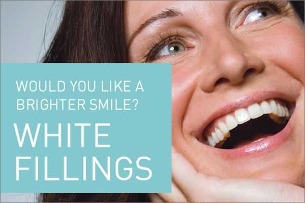tooth-color-fillings.html