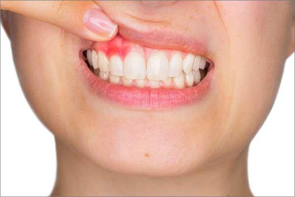 symptoms-of-gum-disease.html
